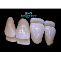 Wholesale Comfortable Dental Composite Veneers , Teeth Composite Veneers from china suppliers