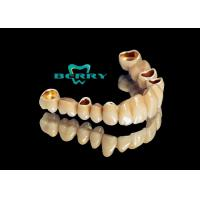 Buy cheap Telescope Crowns Classic and long service life , Telescopic Dentures And Bridges from wholesalers