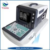YD-U009 portable ultrasound scanner